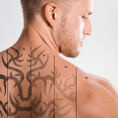 borrar-tatuajes